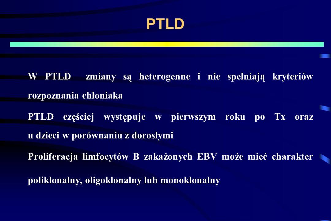 PTLD W PTLD zmiany są heterogenne i nie spełniają kryteriów rozpoznania chłoniaka.
