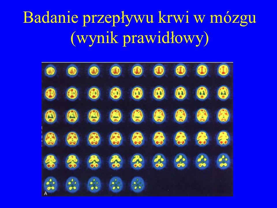 Badanie przepływu krwi w mózgu (wynik prawidłowy)