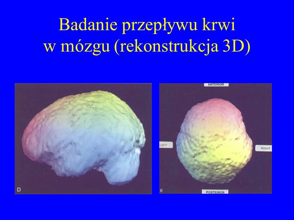 Badanie przepływu krwi w mózgu (rekonstrukcja 3D)