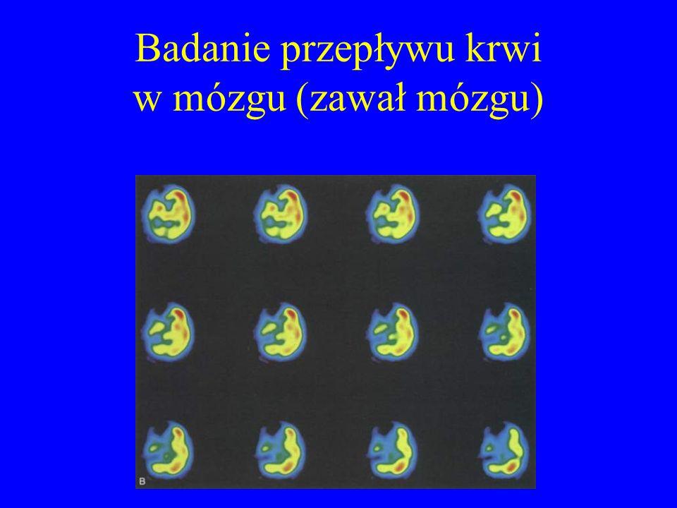 Badanie przepływu krwi w mózgu (zawał mózgu)