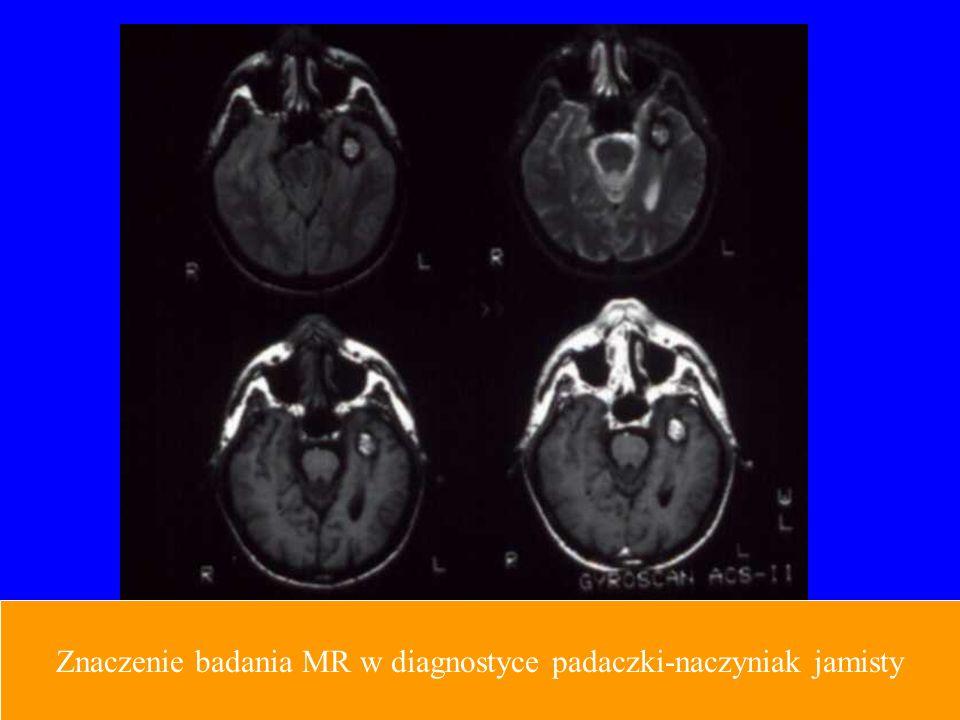 Znaczenie badania MR w diagnostyce padaczki-naczyniak jamisty