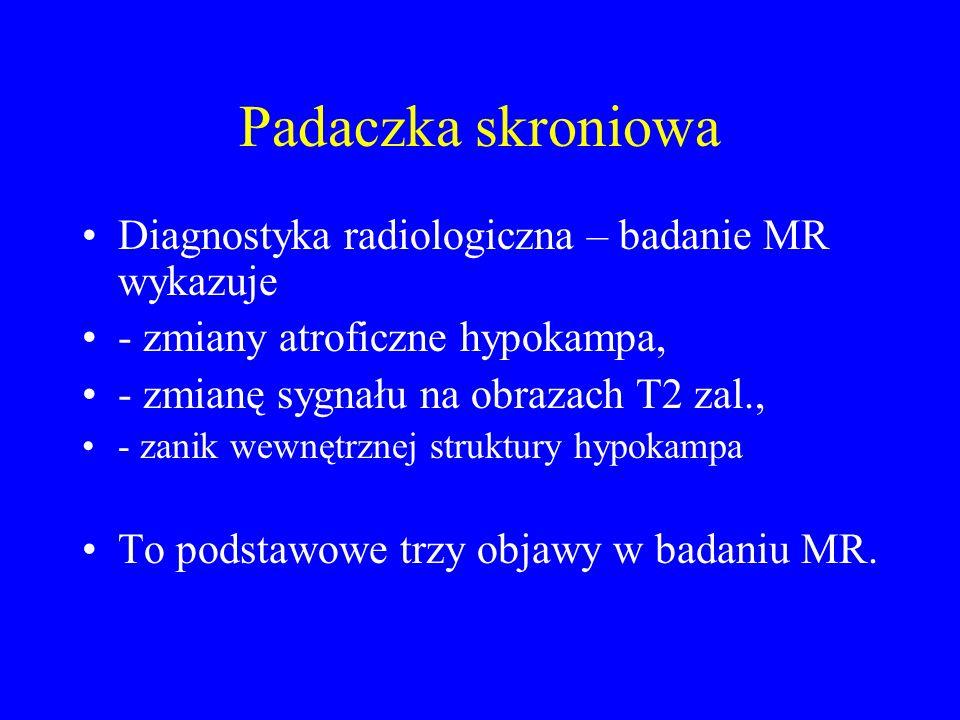 Padaczka skroniowa Diagnostyka radiologiczna – badanie MR wykazuje
