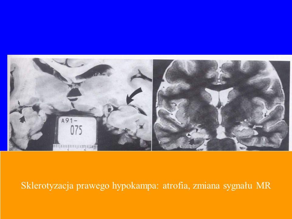 Sklerotyzacja prawego hypokampa: atrofia, zmiana sygnału MR