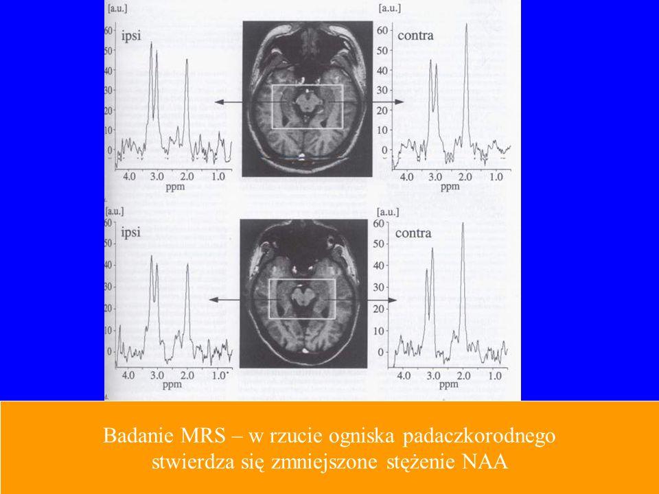 Badanie MRS – w rzucie ogniska padaczkorodnego