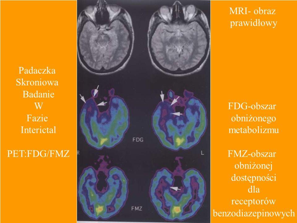 Padaczka Skroniowa. Badanie. W. Fazie. Interictal. PET:FDG/FMZ. MRI- obraz. prawidłowy. FDG-obszar.