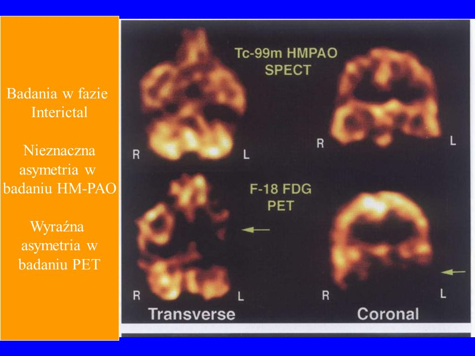 Badania w fazie Interictal Nieznaczna asymetria w badaniu HM-PAO Wyraźna badaniu PET
