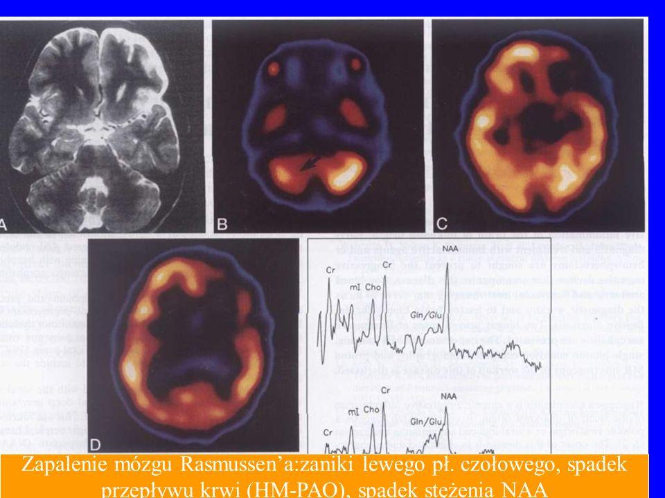 Zapalenie mózgu Rasmussen'a:zaniki lewego pł. czołowego, spadek