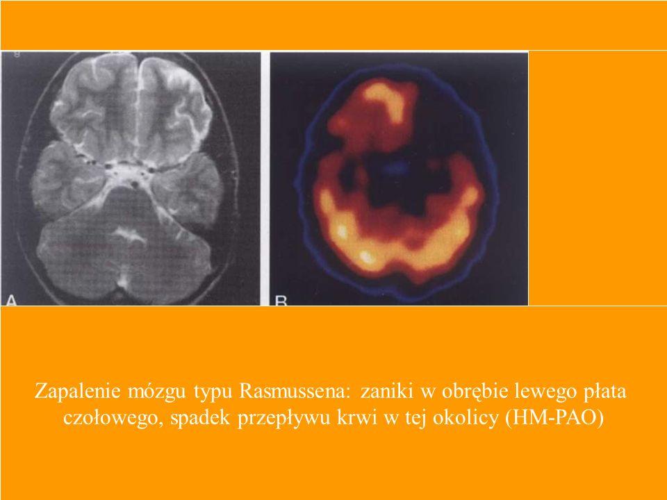 Zapalenie mózgu typu Rasmussena: zaniki w obrębie lewego płata