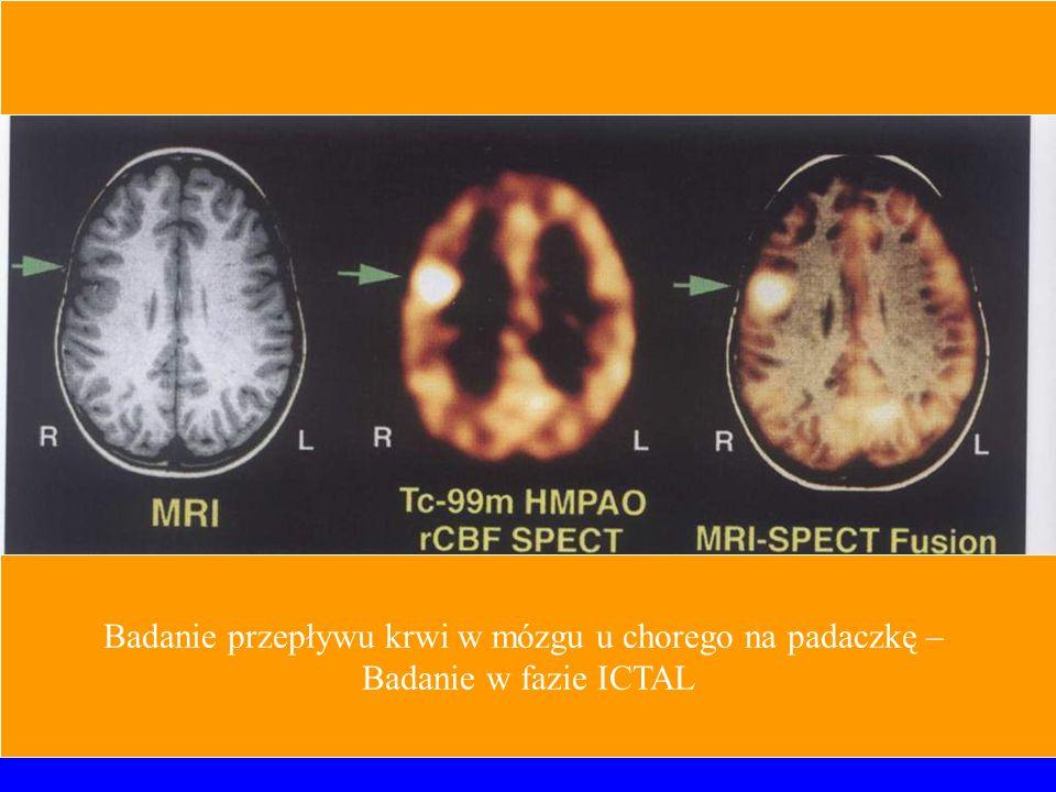 Badanie przepływu krwi w mózgu u chorego na padaczkę –