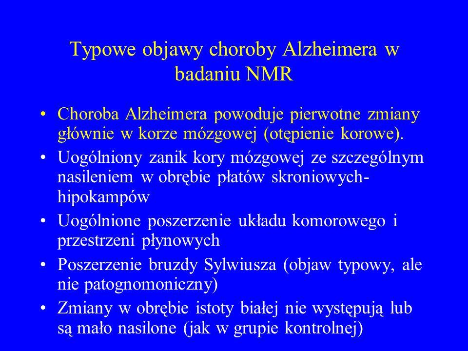 Typowe objawy choroby Alzheimera w badaniu NMR