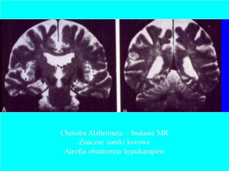 Choroba Alzheimera – badanie MR Znaczne zaniki korowe