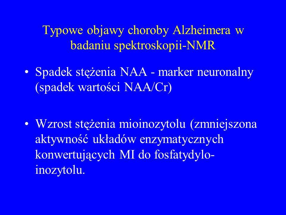 Typowe objawy choroby Alzheimera w badaniu spektroskopii-NMR