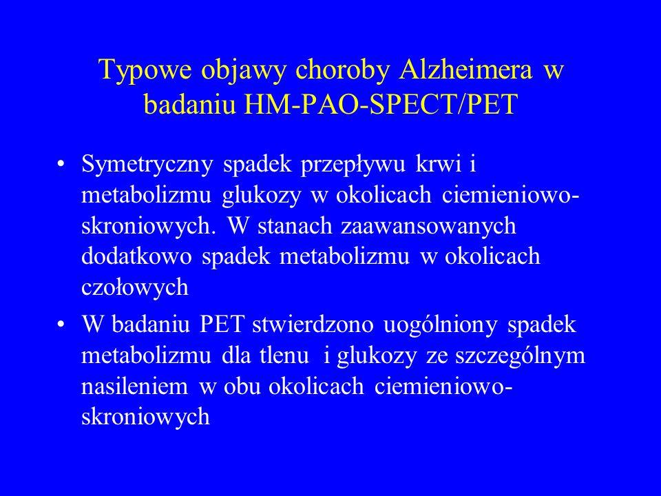 Typowe objawy choroby Alzheimera w badaniu HM-PAO-SPECT/PET