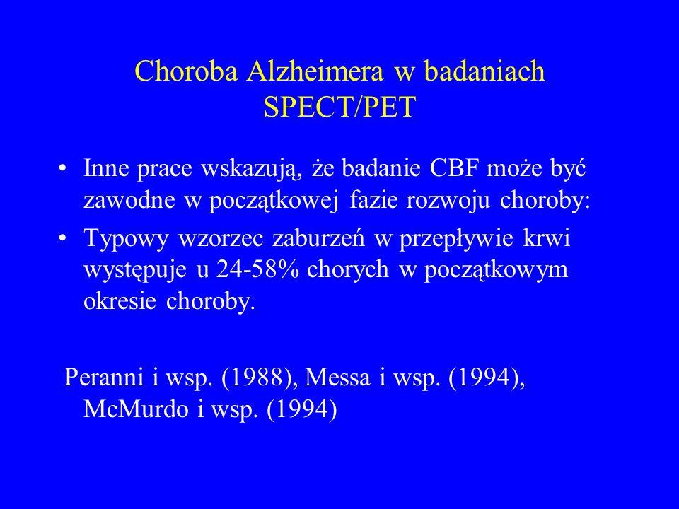 Choroba Alzheimera w badaniach SPECT/PET