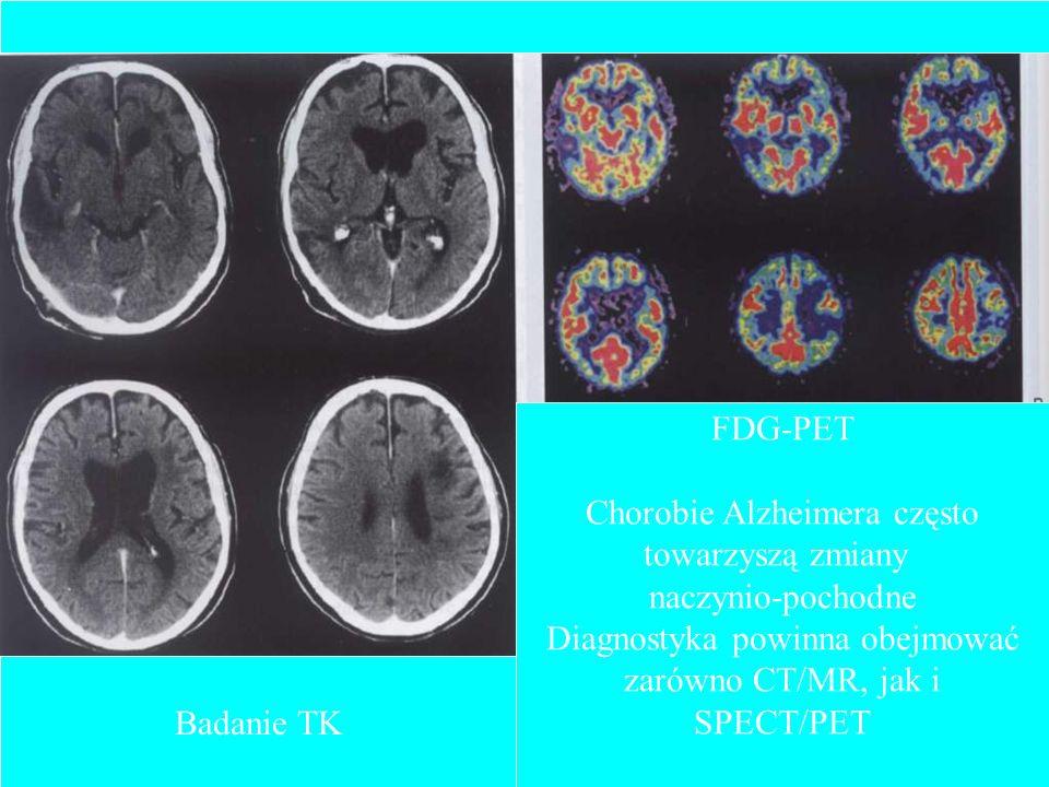 Chorobie Alzheimera często towarzyszą zmiany naczynio-pochodne