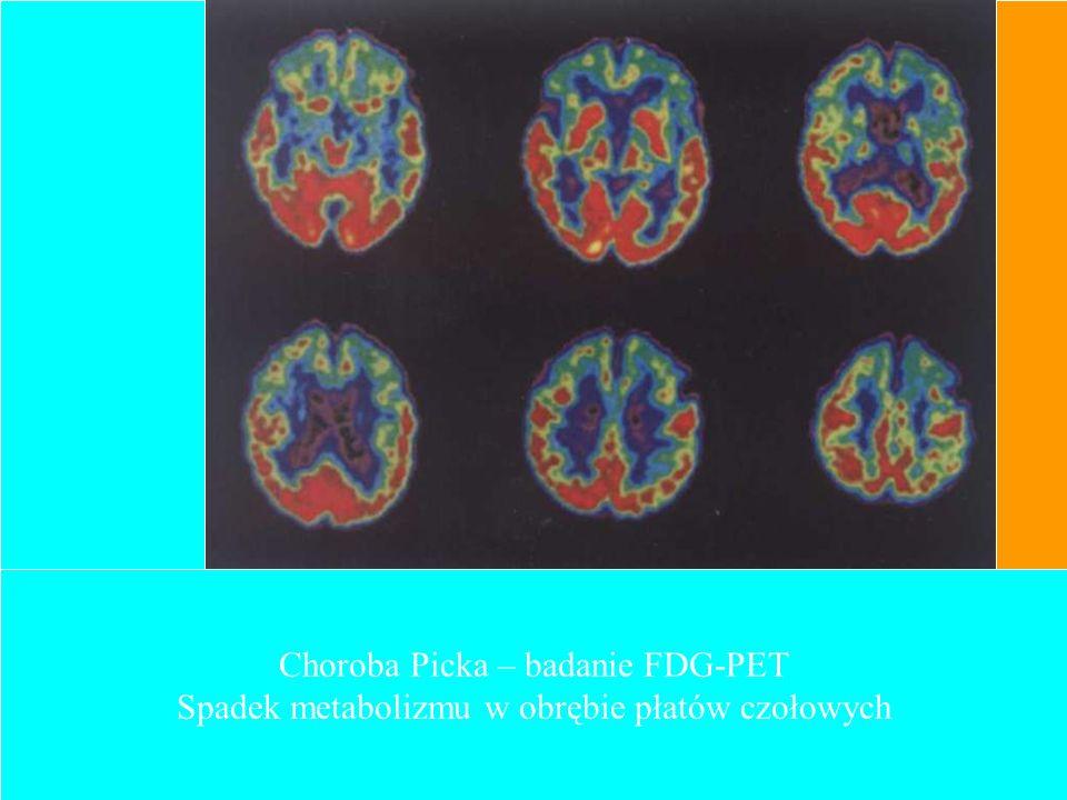 Choroba Picka – badanie FDG-PET