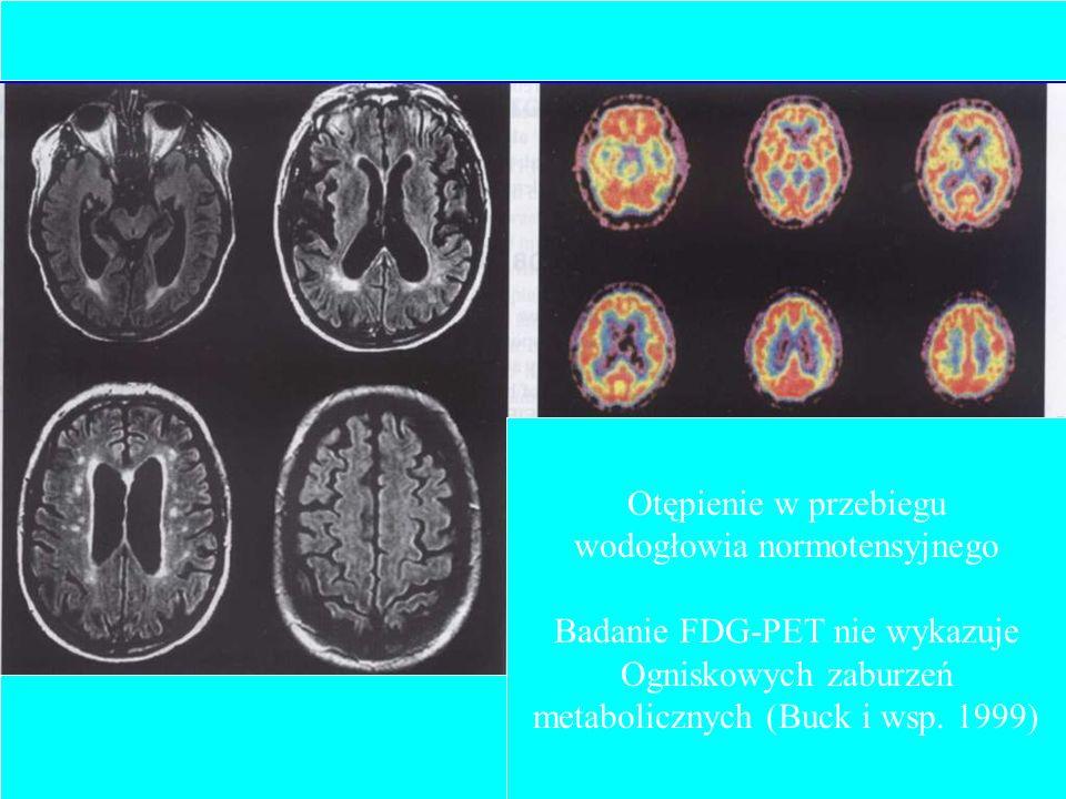 wodogłowia normotensyjnego Badanie FDG-PET nie wykazuje