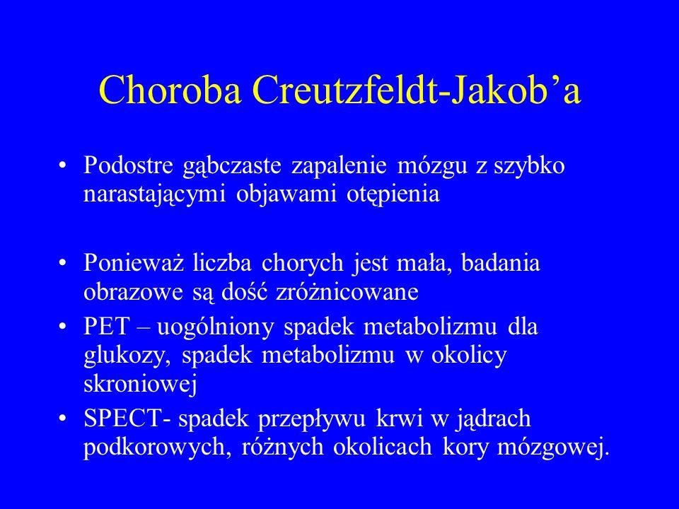 Choroba Creutzfeldt-Jakob'a