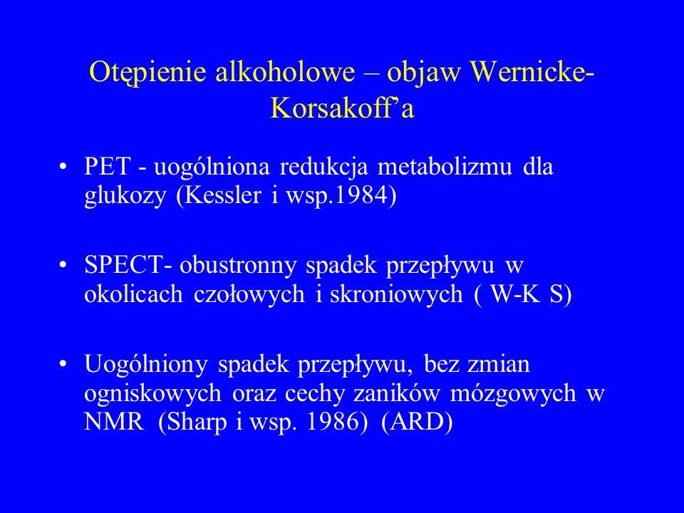 Otępienie alkoholowe – objaw Wernicke-Korsakoff'a