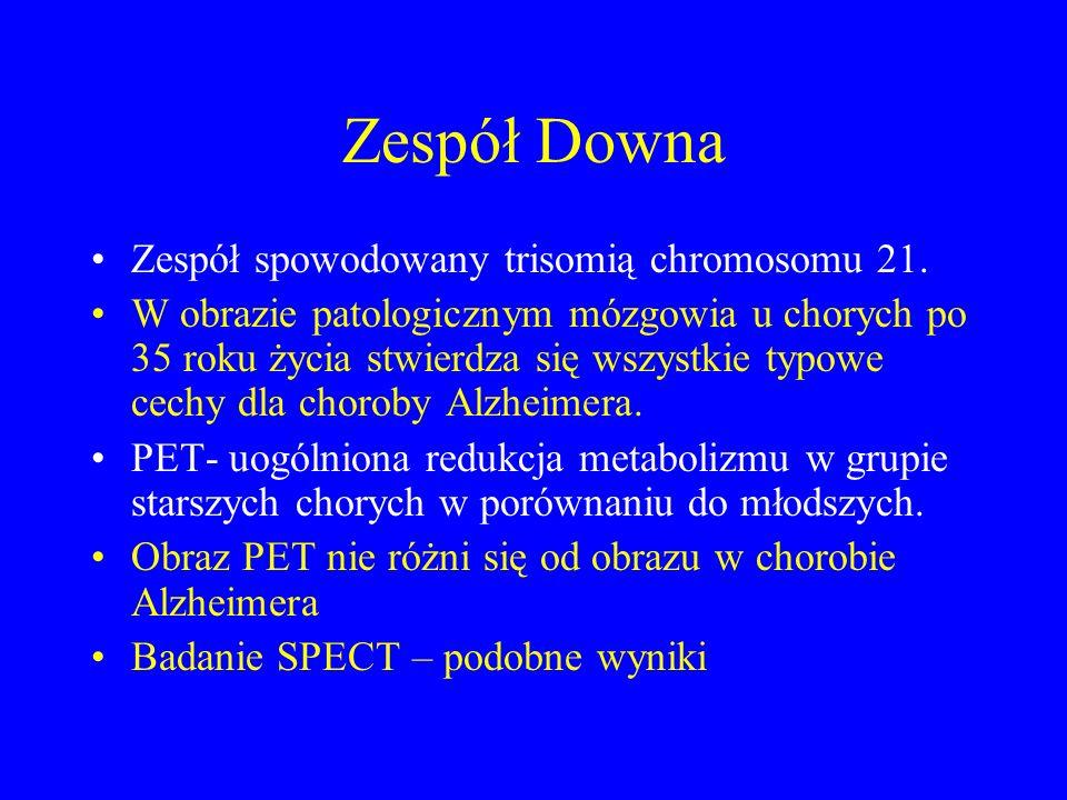 Zespół Downa Zespół spowodowany trisomią chromosomu 21.