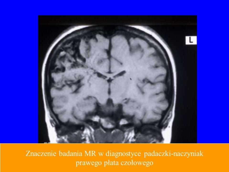 Znaczenie badania MR w diagnostyce padaczki-naczyniak