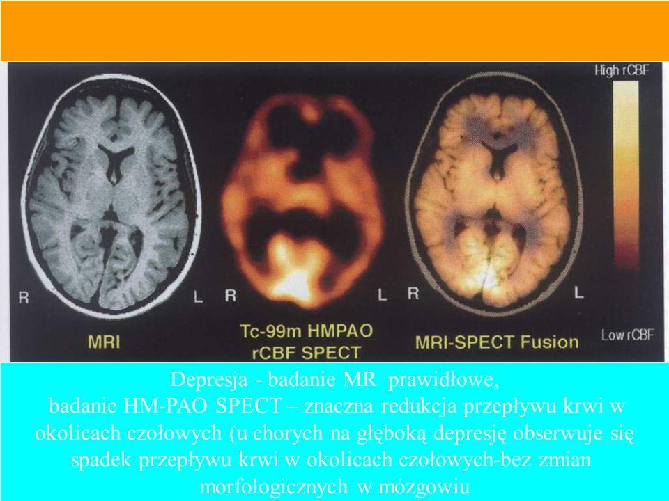 Depresja - badanie MR prawidłowe,