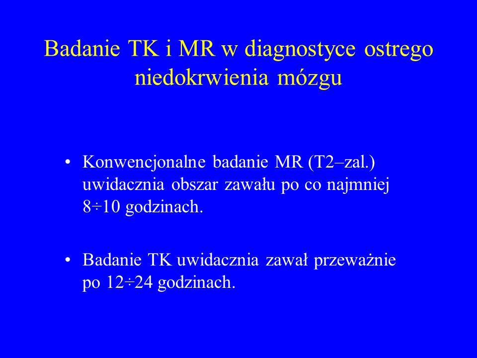 Badanie TK i MR w diagnostyce ostrego niedokrwienia mózgu