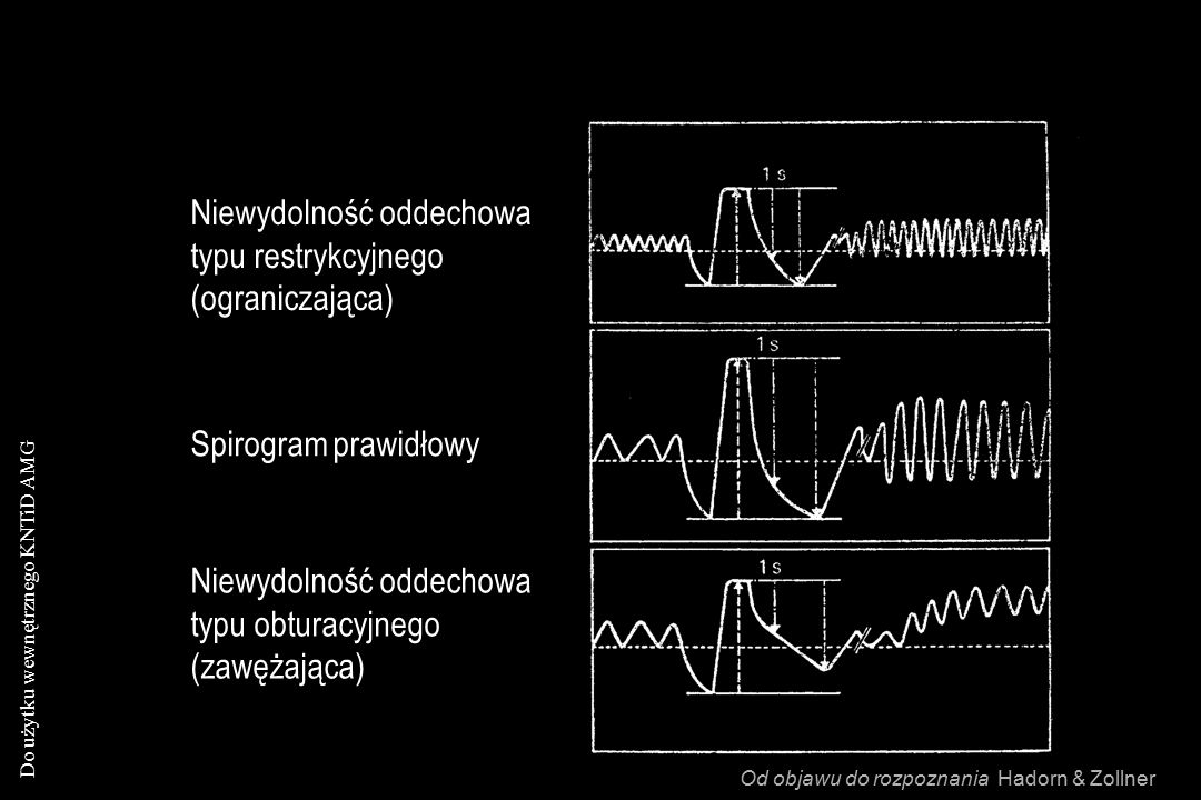 Niewydolność oddechowa typu restrykcyjnego (ograniczająca)
