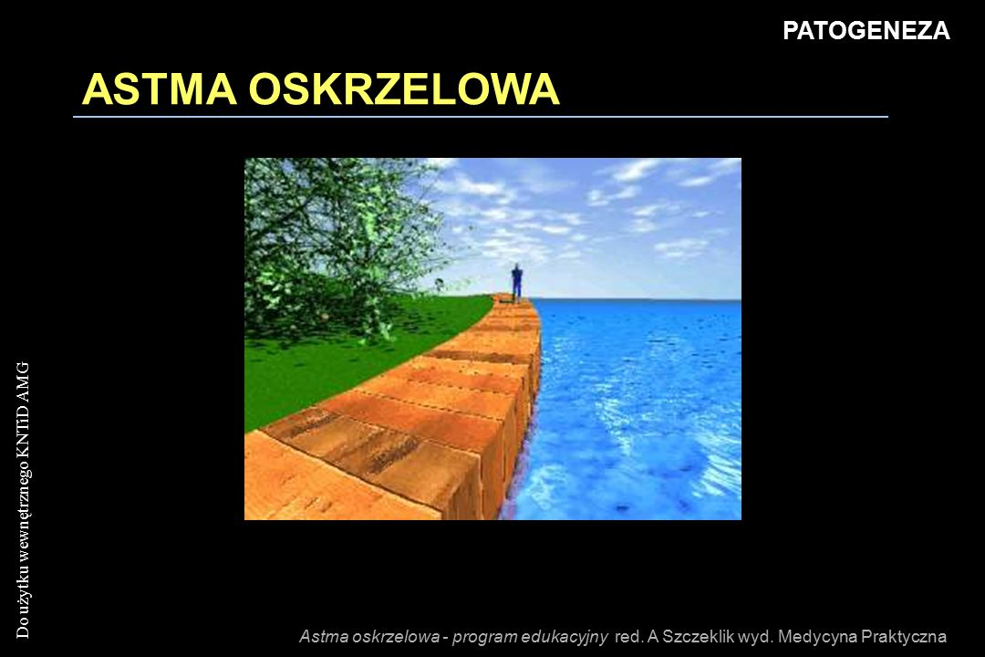 ASTMA OSKRZELOWA PATOGENEZA
