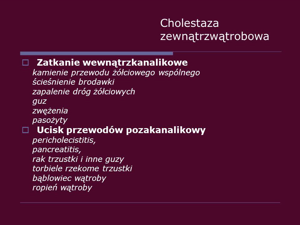 Cholestaza zewnątrzwątrobowa