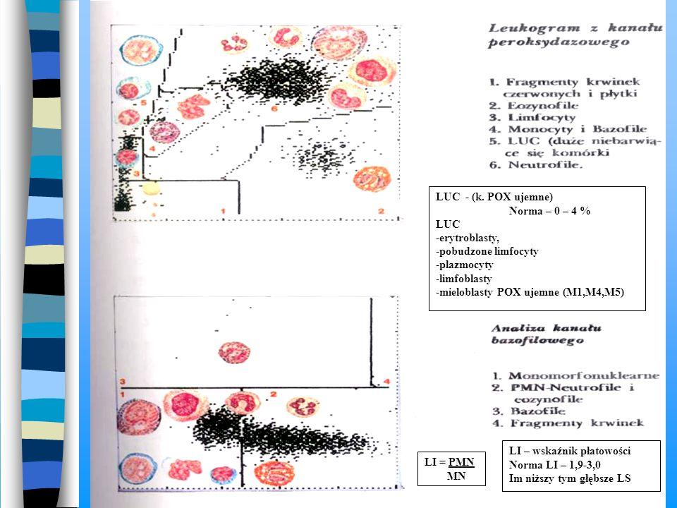 LUC - (k. POX ujemne) Norma – 0 – 4 % LUC. erytroblasty, pobudzone limfocyty. plazmocyty. limfoblasty.