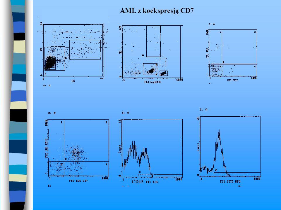AML z koekspresją CD7 CD15