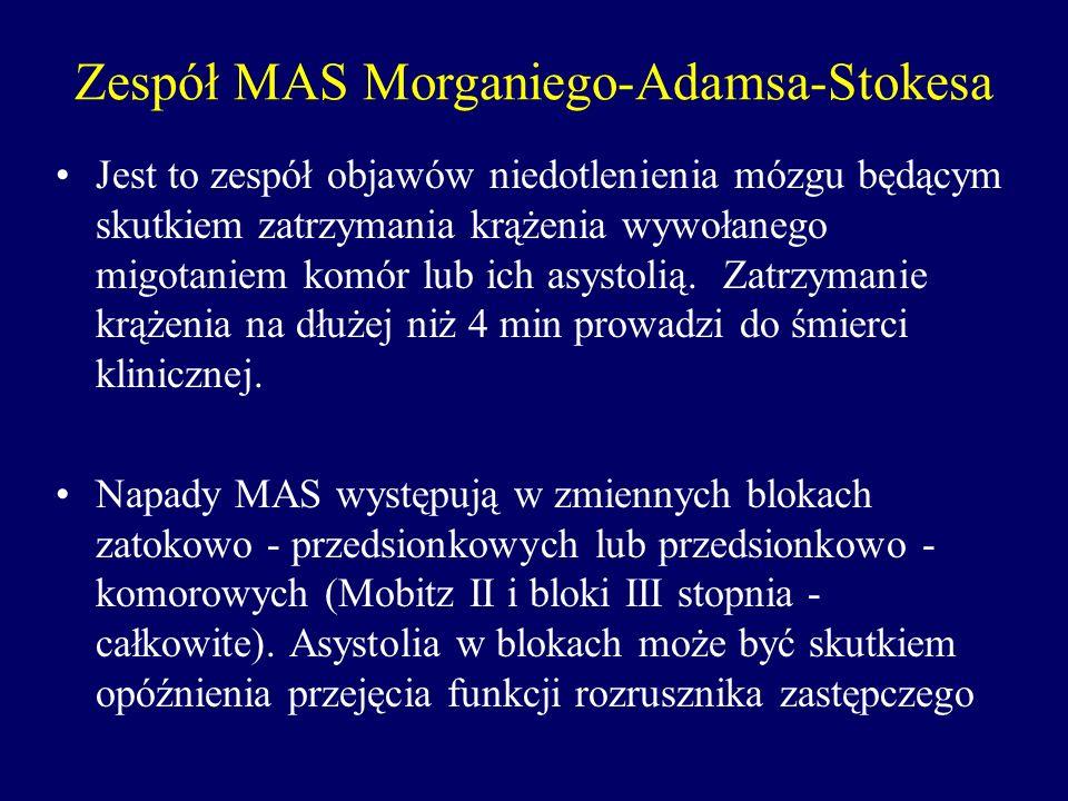 Zespół MAS Morganiego-Adamsa-Stokesa