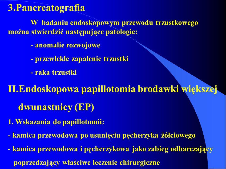 II.Endoskopowa papillotomia brodawki większej dwunastnicy (EP)