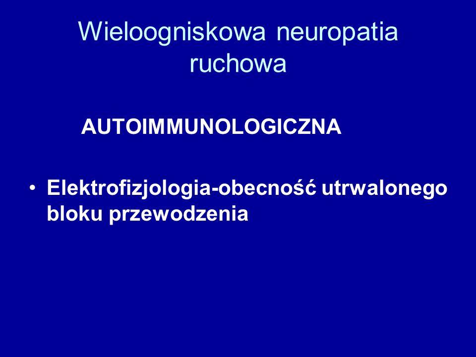 Wieloogniskowa neuropatia ruchowa