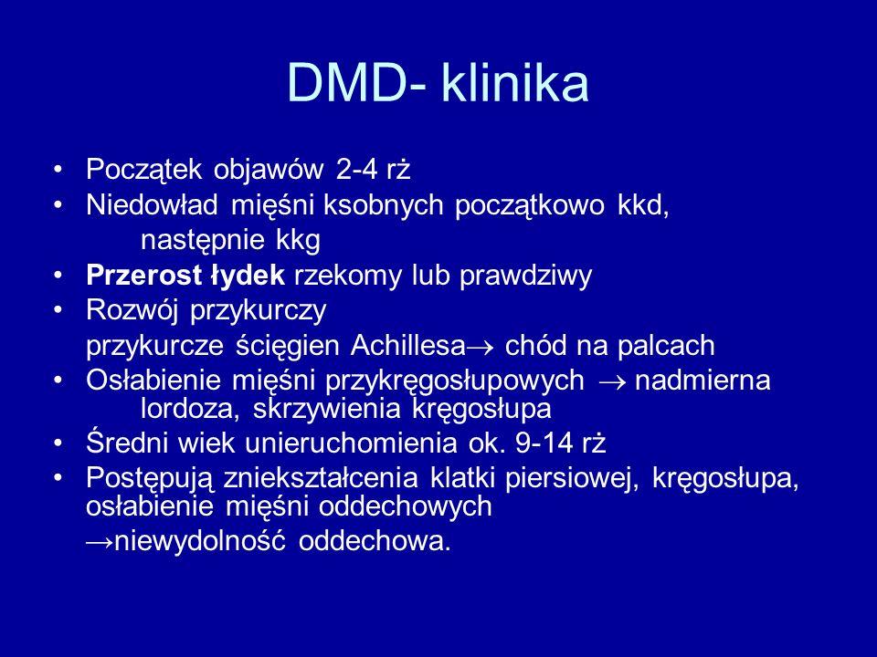 DMD- klinika Początek objawów 2-4 rż