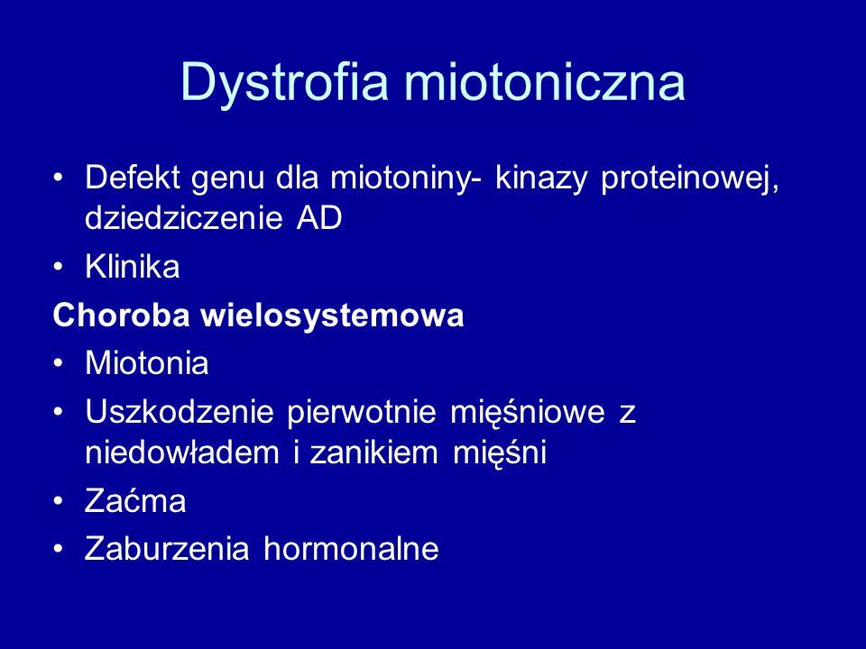 Dystrofia miotoniczna