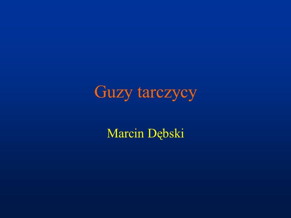 Guzy tarczycy Marcin Dębski