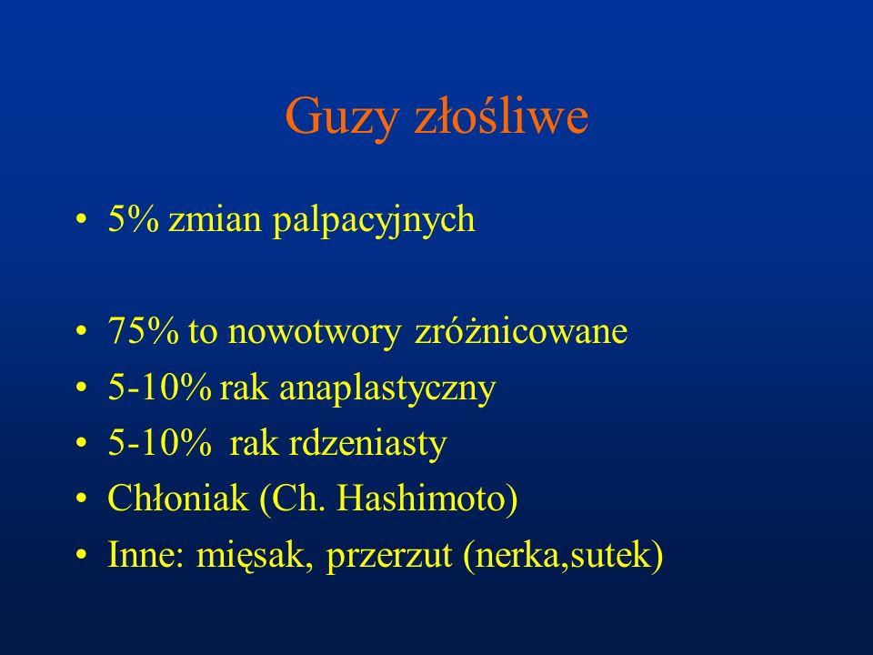 Guzy złośliwe 5% zmian palpacyjnych 75% to nowotwory zróżnicowane