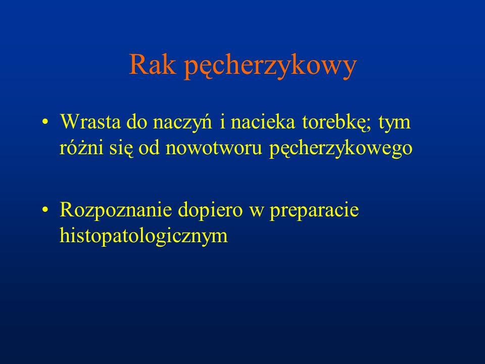 Rak pęcherzykowy Wrasta do naczyń i nacieka torebkę; tym różni się od nowotworu pęcherzykowego.