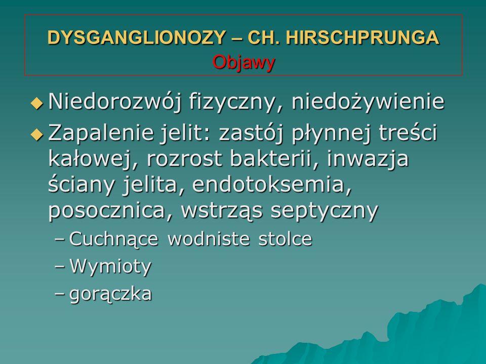DYSGANGLIONOZY – CH. HIRSCHPRUNGA Objawy