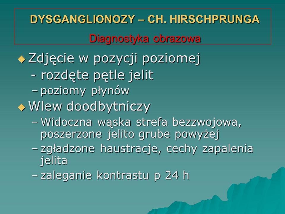 DYSGANGLIONOZY – CH. HIRSCHPRUNGA Diagnostyka obrazowa