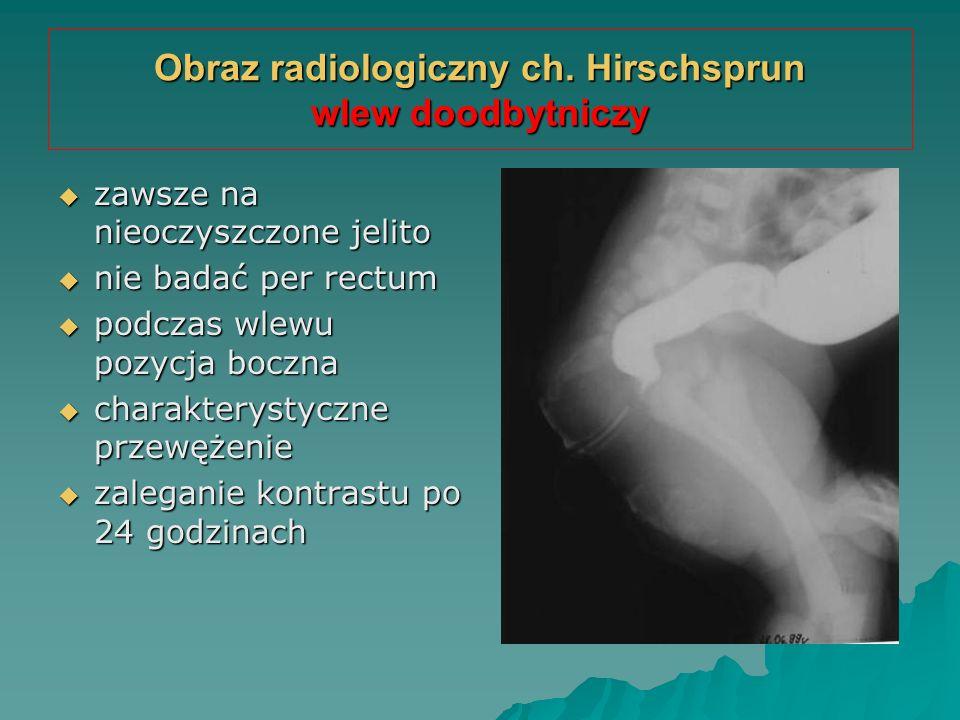 Obraz radiologiczny ch. Hirschsprun wlew doodbytniczy