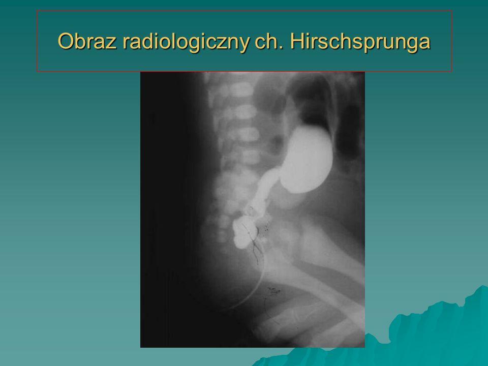 Obraz radiologiczny ch. Hirschsprunga
