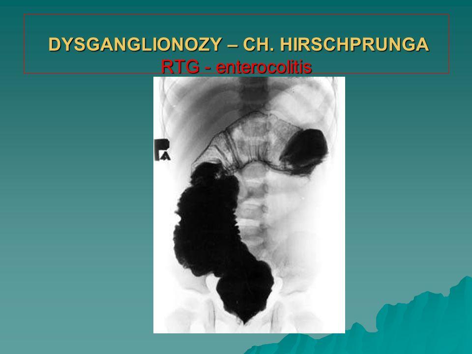 DYSGANGLIONOZY – CH. HIRSCHPRUNGA RTG - enterocolitis