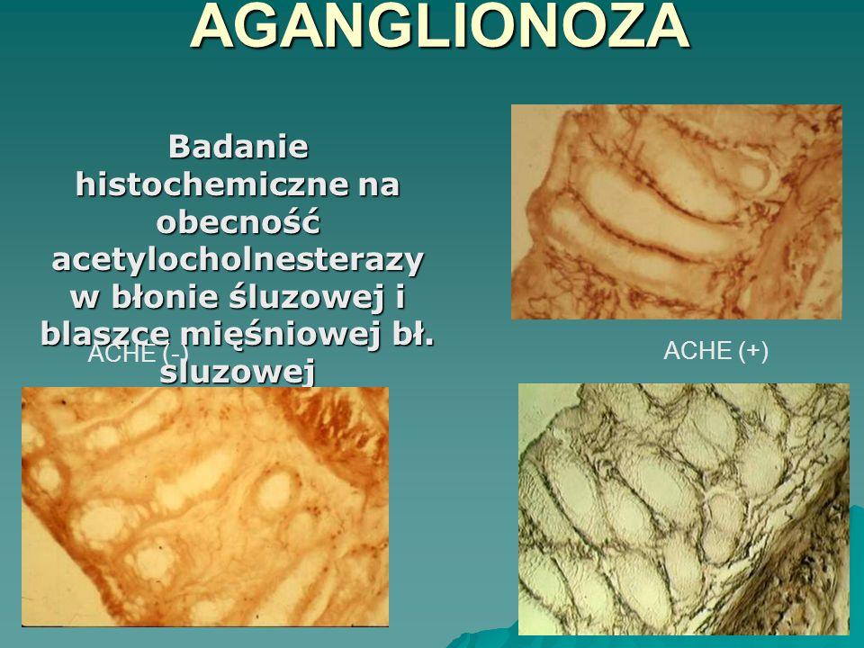 AGANGLIONOZA Badanie histochemiczne na obecność acetylocholnesterazy w błonie śluzowej i blaszce mięśniowej bł. sluzowej.