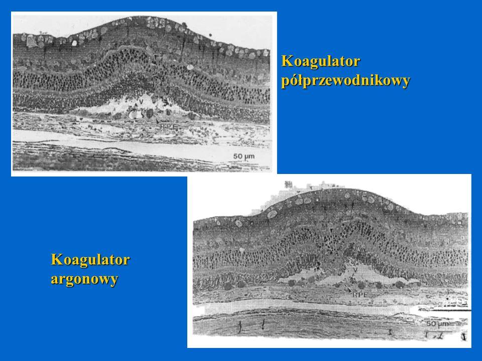 Koagulator półprzewodnikowy Koagulator argonowy