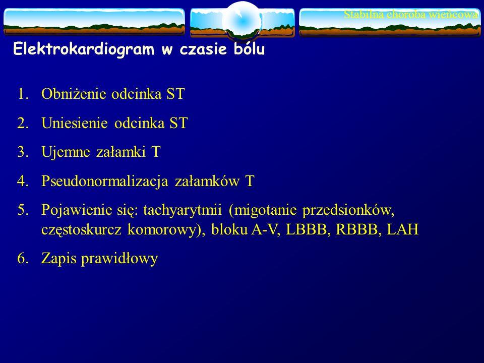 Elektrokardiogram w czasie bólu