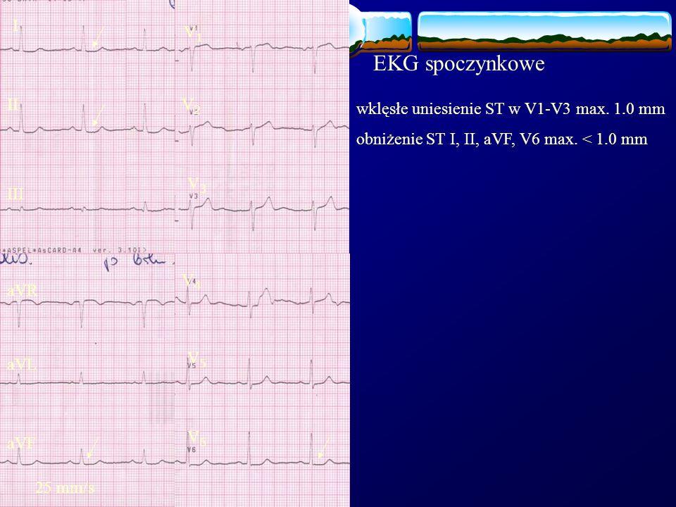 EKG spoczynkowe I V1 II V2 wklęsłe uniesienie ST w V1-V3 max. 1.0 mm