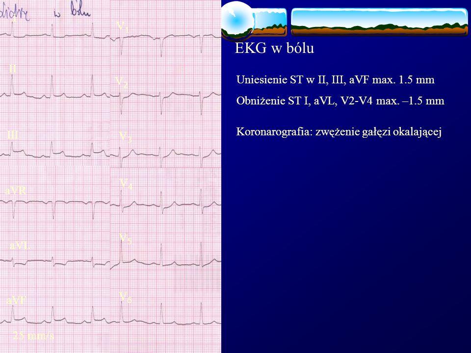 EKG w bólu I V1 II Uniesienie ST w II, III, aVF max. 1.5 mm V2